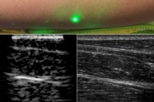 ultrasound probe